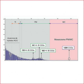 MOSAICISMO PREMUTACIÓN-MUTACIÓN COMPLETA EN EL GEN FMR1: TRIPLET PRIMED REPEAT-PCR